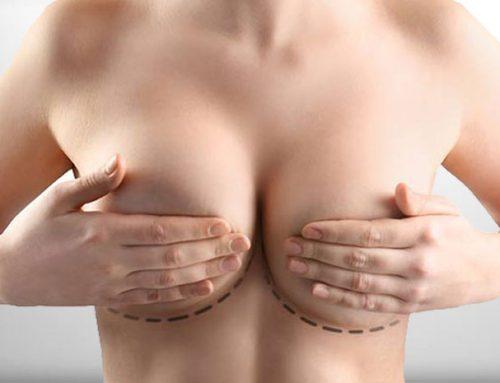 Meme Küçültme | Göğüs Küçültme